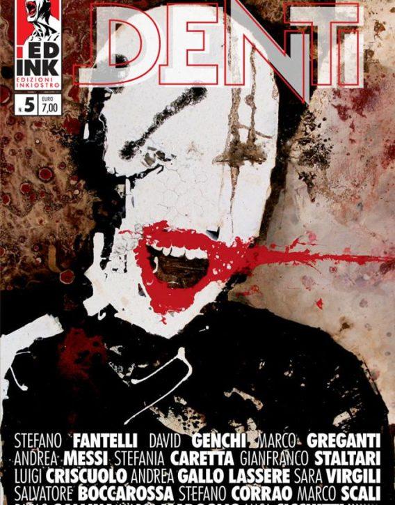 denti5